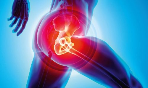 Hip replacement: the pros and cons of early surgery